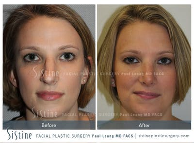 Rhinoplasty Gallery - Patient 4883787 - Image 1