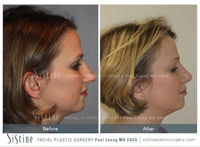 Rhinoplasty Gallery - Patient 4883787 - Image 2