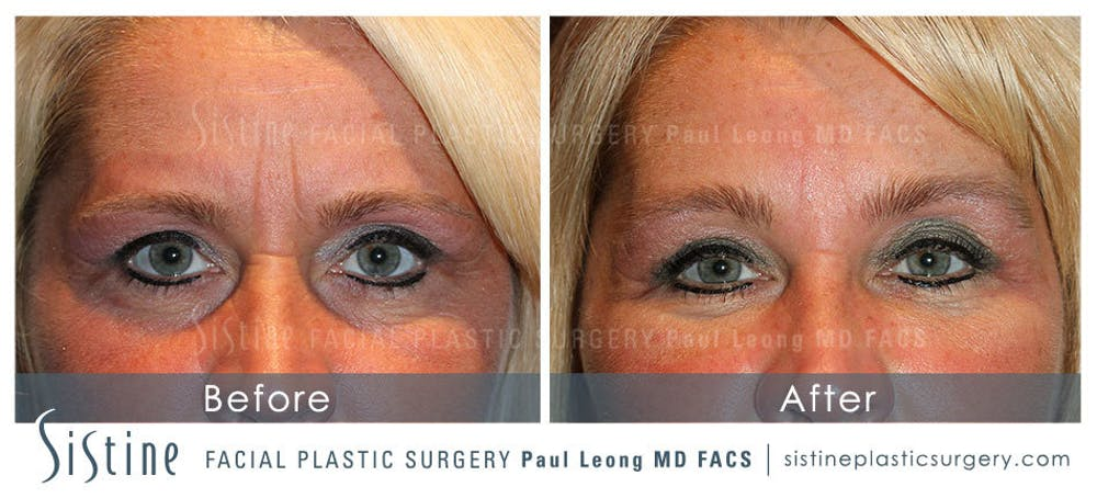Brow and Forehead Gallery - Patient 4883799 - Image 1