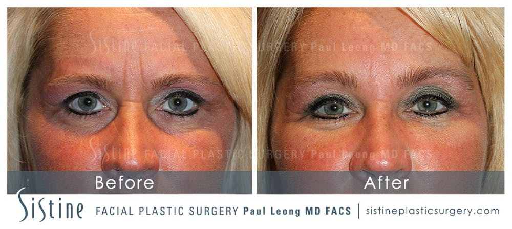 Brow and Forehead Gallery - Patient 4883803 - Image 1