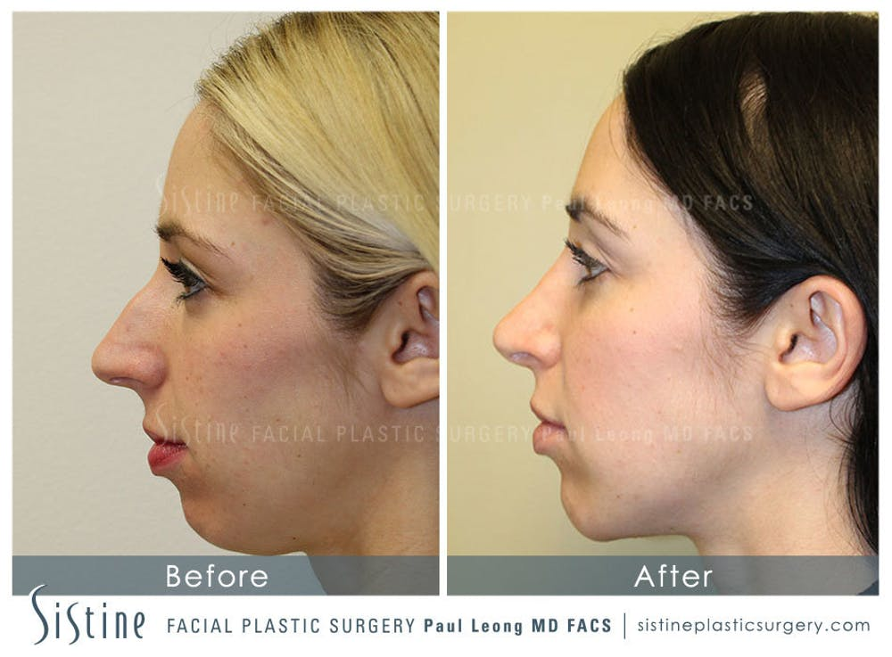 Chin, Jaw and Neck Gallery - Patient 4884538 - Image 1