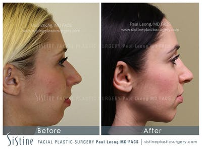 Chin, Jaw and Neck Gallery - Patient 4884538 - Image 2