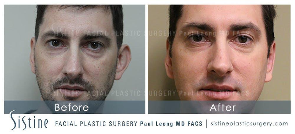 Ears Gallery - Patient 4884559 - Image 1