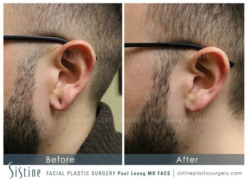 Ears Gallery - Patient 4884562 - Image 1