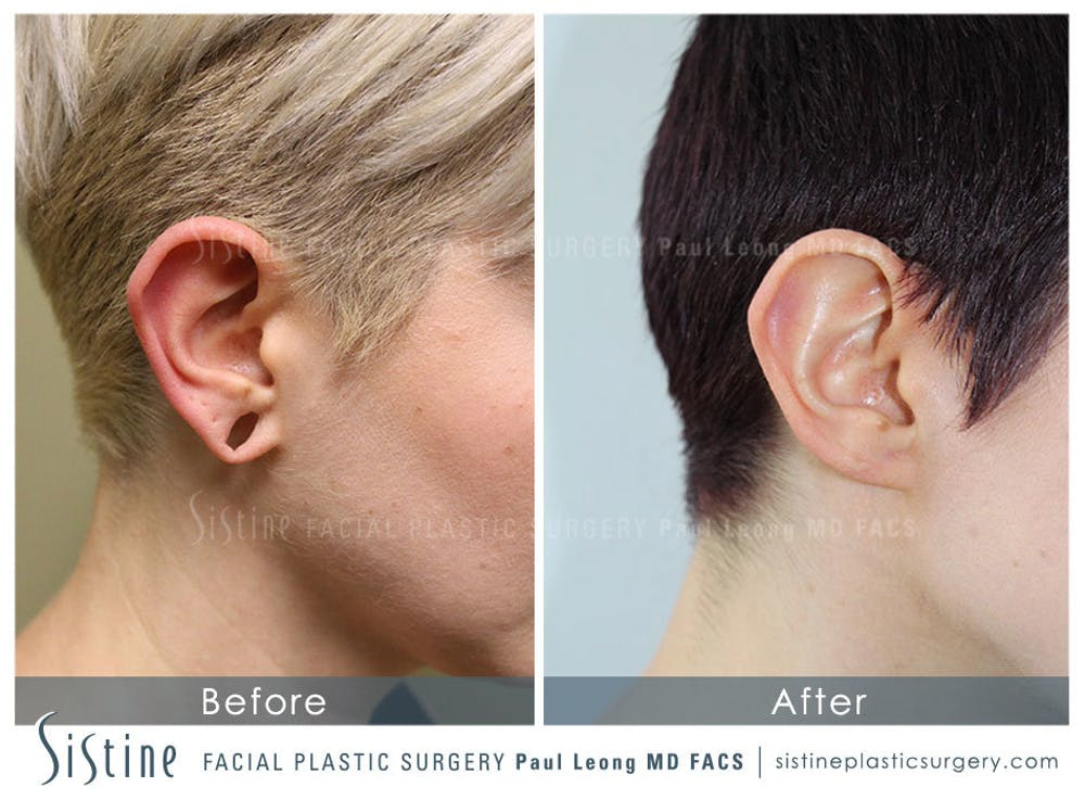 Ears Gallery - Patient 4889600 - Image 1