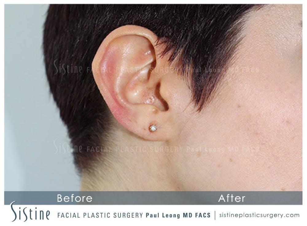 Ears Gallery - Patient 4889600 - Image 2