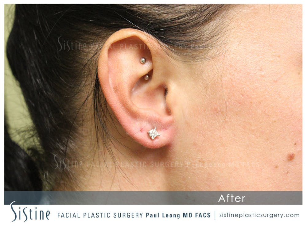 Ears Gallery - Patient 4889601 - Image 1