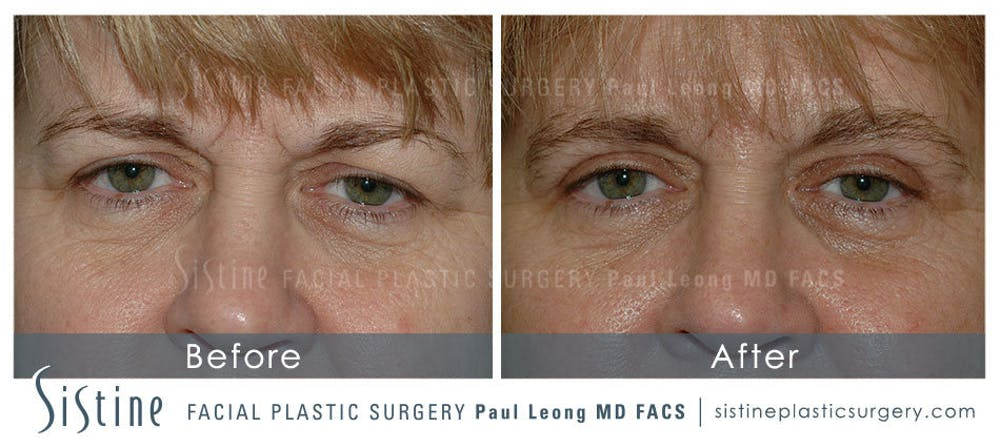 Eyes Gallery - Patient 4889742 - Image 1