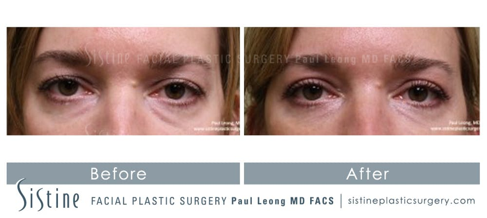 Eyes Gallery - Patient 4889811 - Image 1