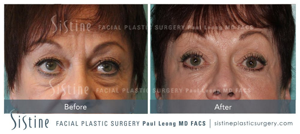 Eyes Gallery - Patient 4889838 - Image 1