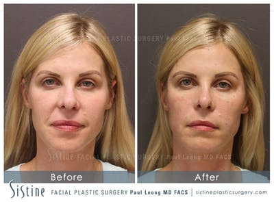 Nasolabial Folds Gallery - Patient 4889947 - Image 1