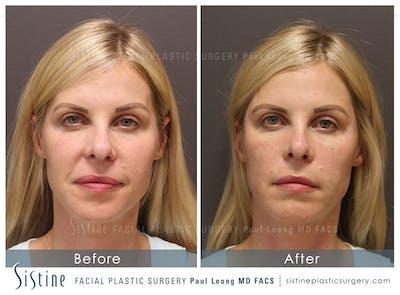 Nasolabial Folds Gallery - Patient 4889947 - Image 1