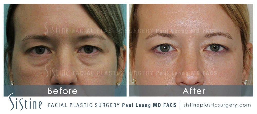 Nasolabial Folds Gallery - Patient 4889948 - Image 1