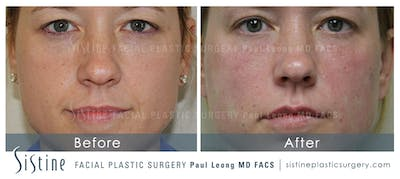 Nasolabial Folds Gallery - Patient 4889948 - Image 2