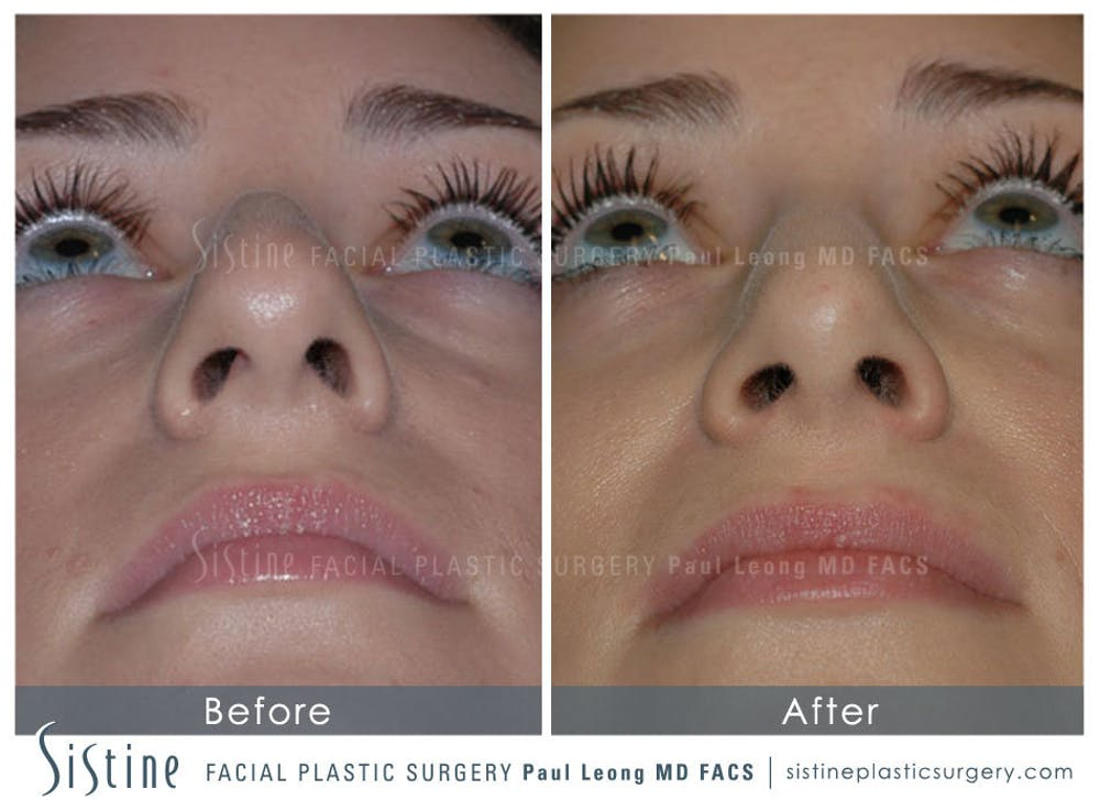 Nose Gallery - Patient 4889950 - Image 6