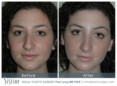 Nose Gallery - Patient 4889967 - Image 1