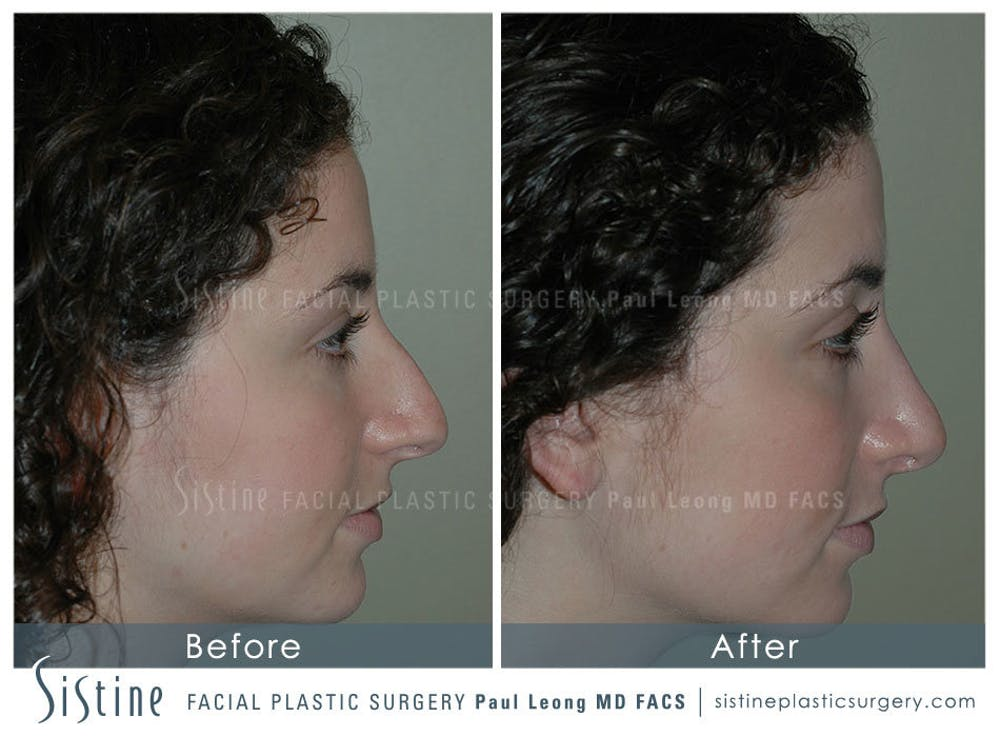 Nose Gallery - Patient 4889967 - Image 2