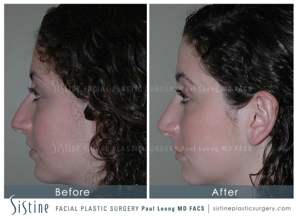 Nose Gallery - Patient 4889967 - Image 4