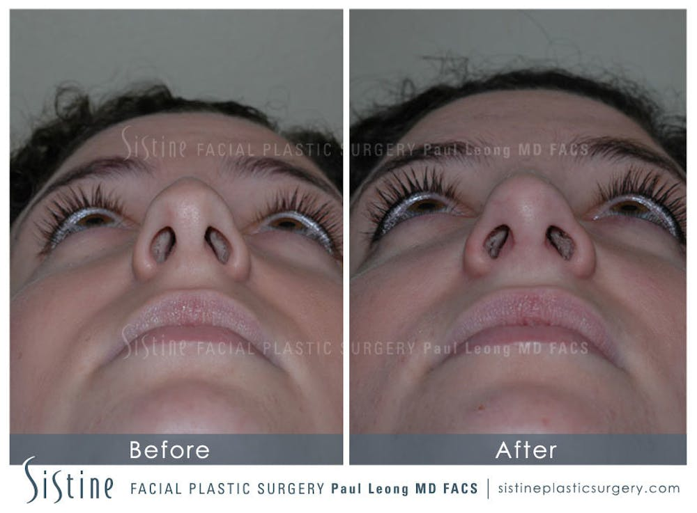 Nose Gallery - Patient 4889967 - Image 6