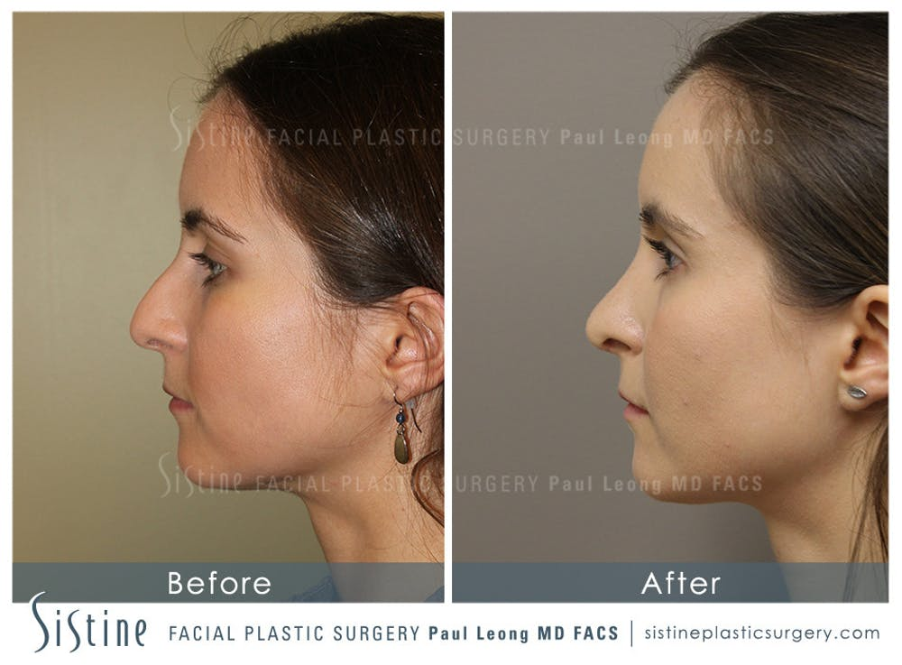 Nose Gallery - Patient 4889969 - Image 1