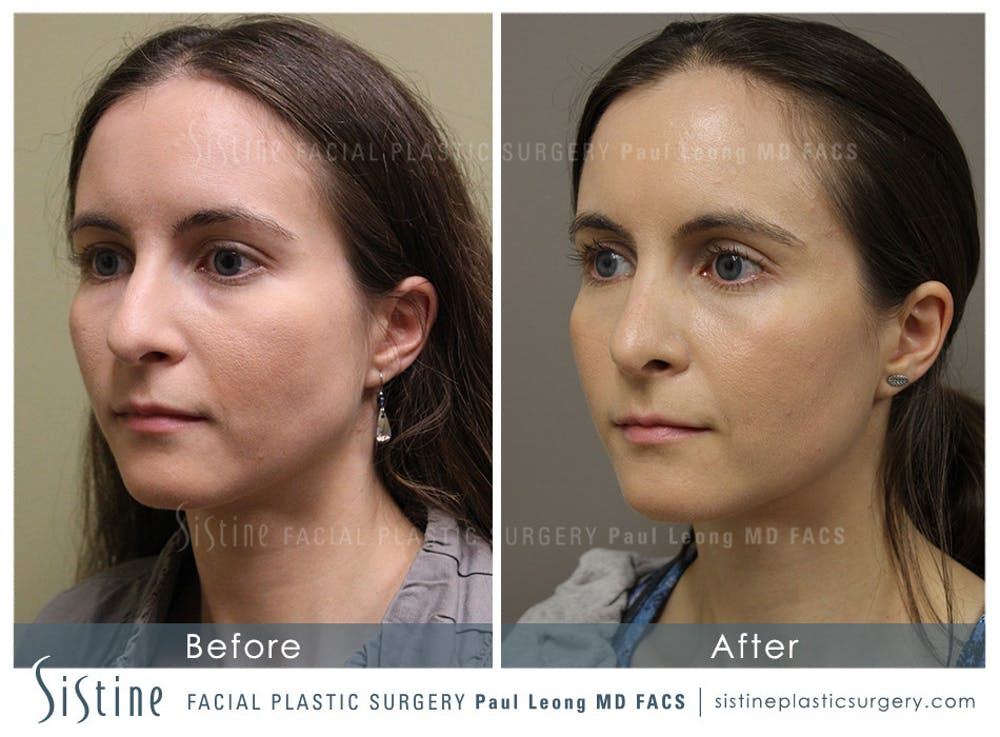 Nose Gallery - Patient 4889969 - Image 3