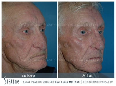 Nose Gallery - Patient 4889974 - Image 1