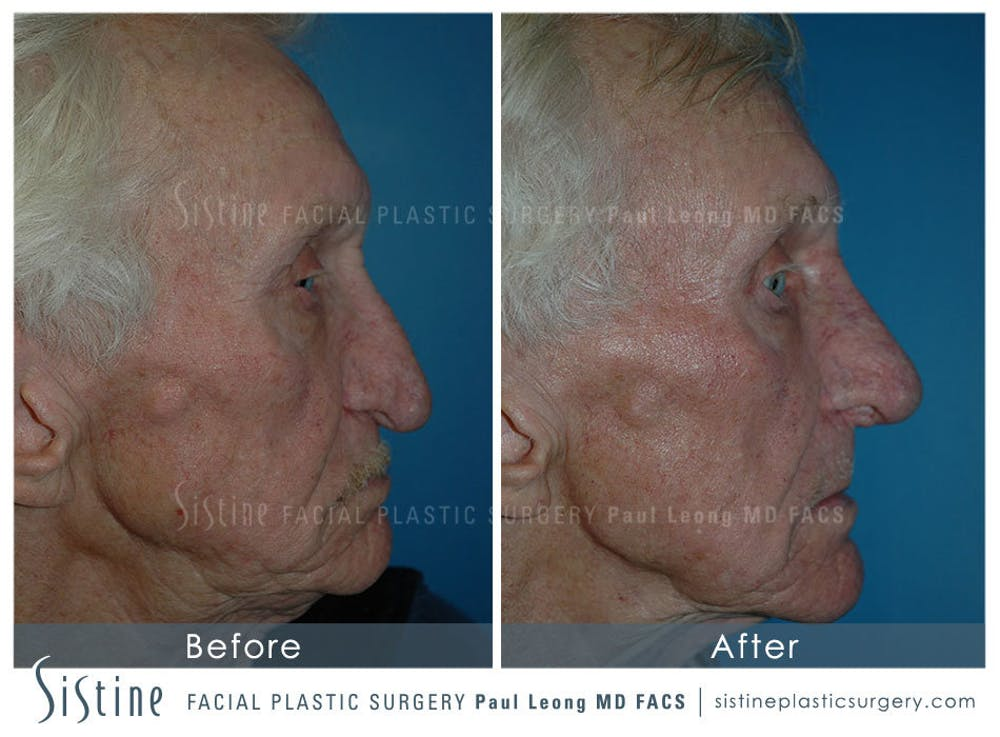 Nose Gallery - Patient 4889974 - Image 3