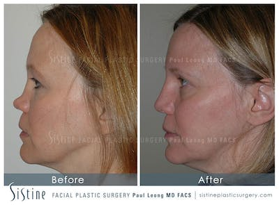 Nose Gallery - Patient 4890013 - Image 1