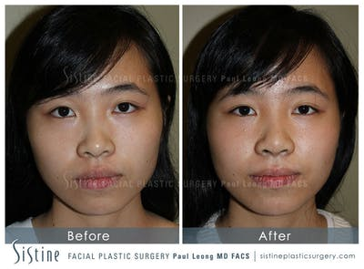 Nose Gallery - Patient 4890073 - Image 1