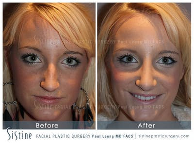 Nose Gallery - Patient 4890074 - Image 1