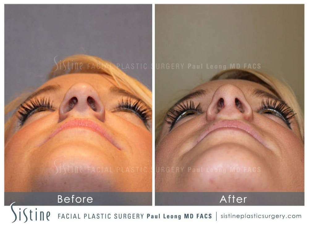 Nose Gallery - Patient 4890074 - Image 4