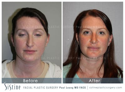 Nose Gallery - Patient 4890078 - Image 1
