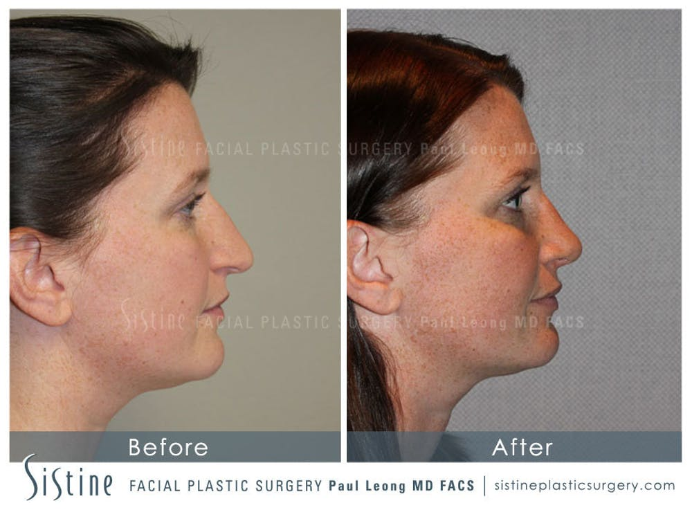 Nose Gallery - Patient 4890078 - Image 5