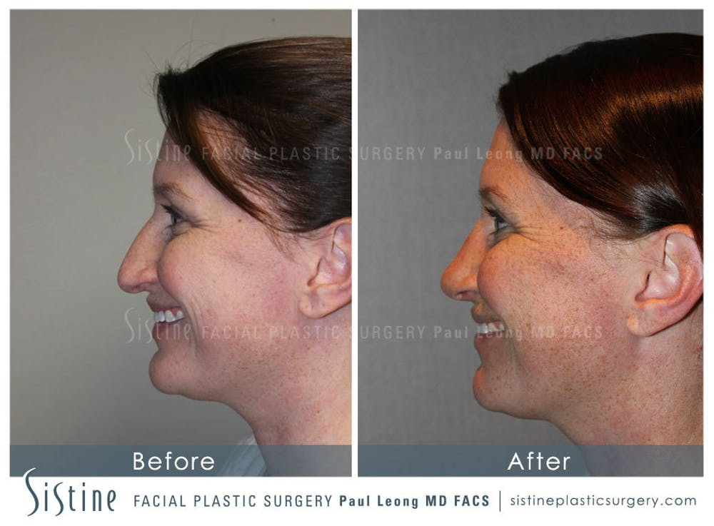 Nose Gallery - Patient 4890078 - Image 8
