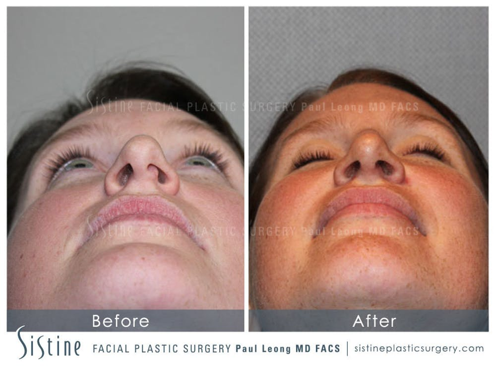 Nose Gallery - Patient 4890078 - Image 9