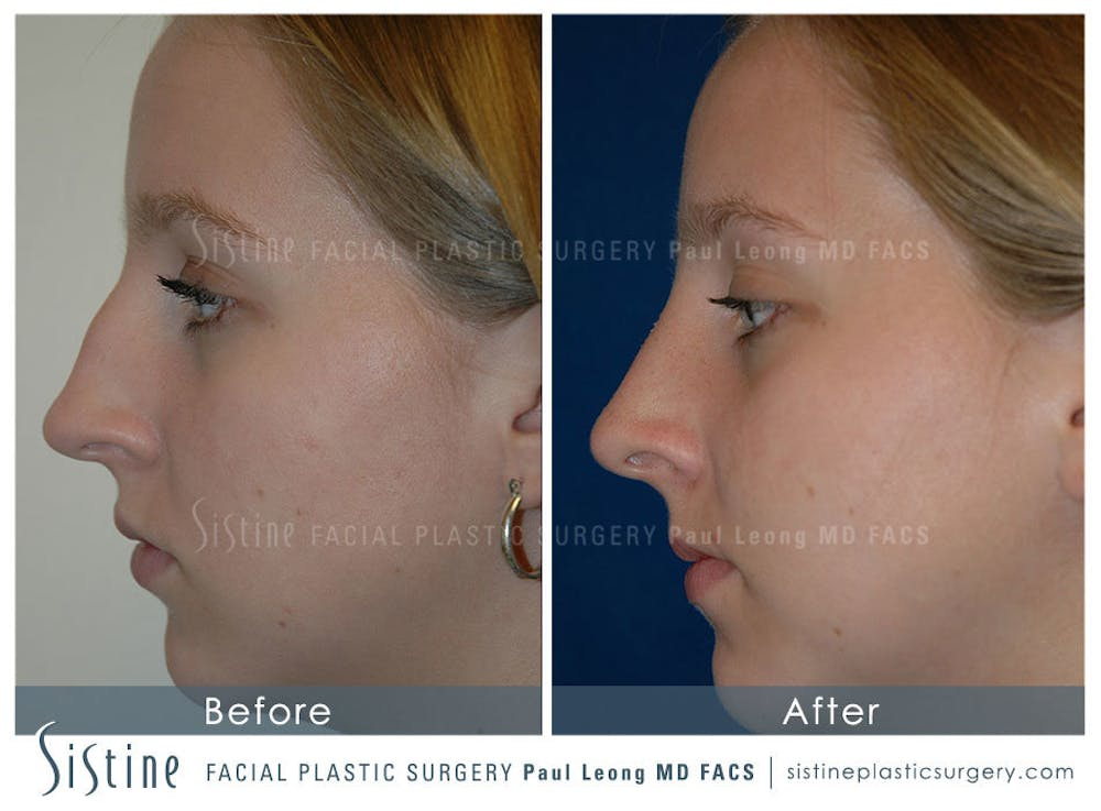 Nose Gallery - Patient 4890084 - Image 1