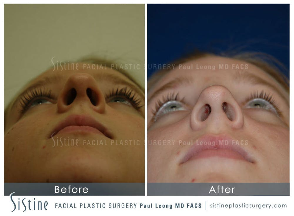 Nose Gallery - Patient 4890084 - Image 3