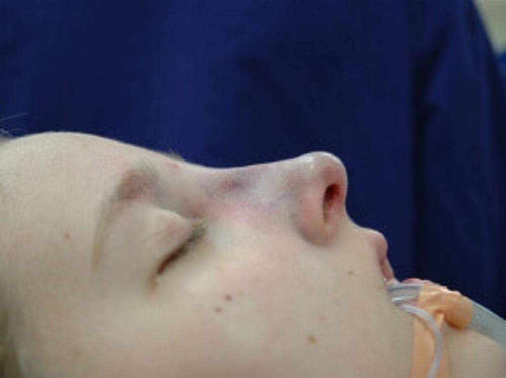 Nose Gallery - Patient 4890084 - Image 4