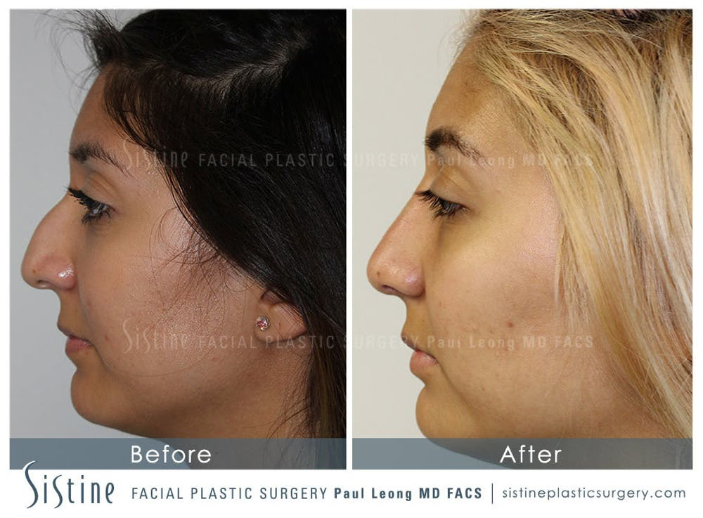 Nose Gallery - Patient 4890128 - Image 1