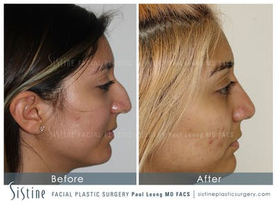 Nose Gallery - Patient 4890128 - Image 2