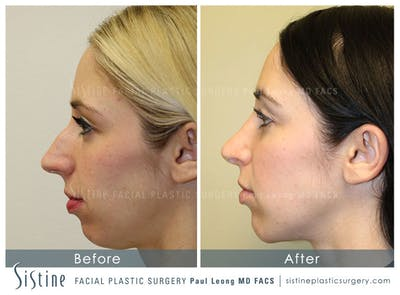 Nose Gallery - Patient 4890131 - Image 1