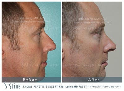 Nose Gallery - Patient 4890202 - Image 2