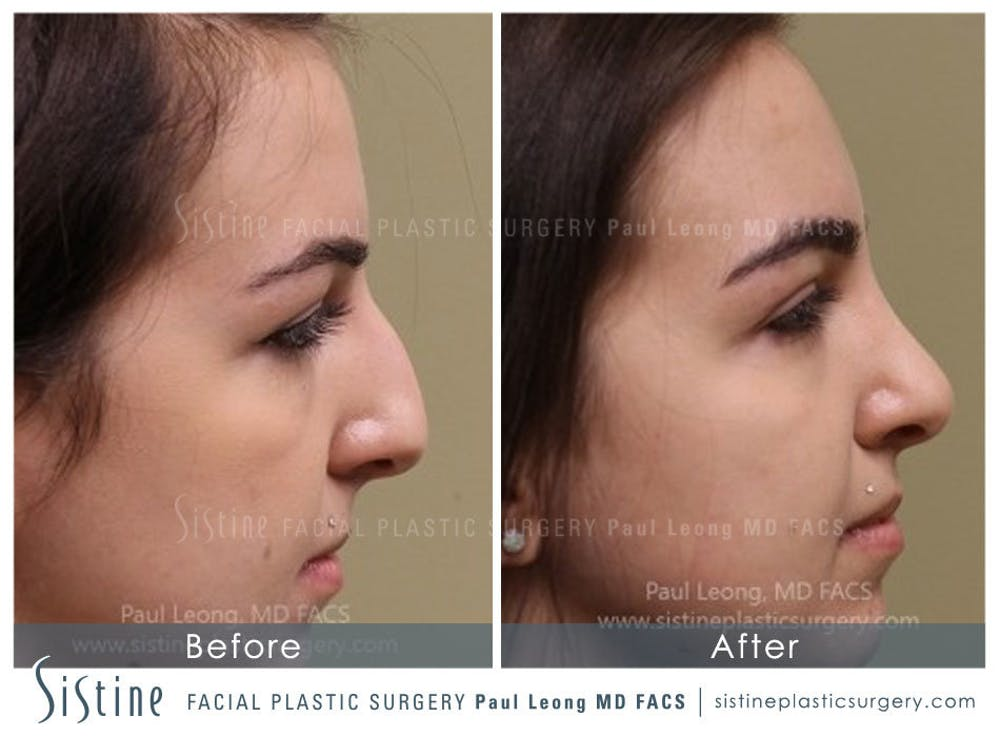 Nose Gallery - Patient 4890341 - Image 1
