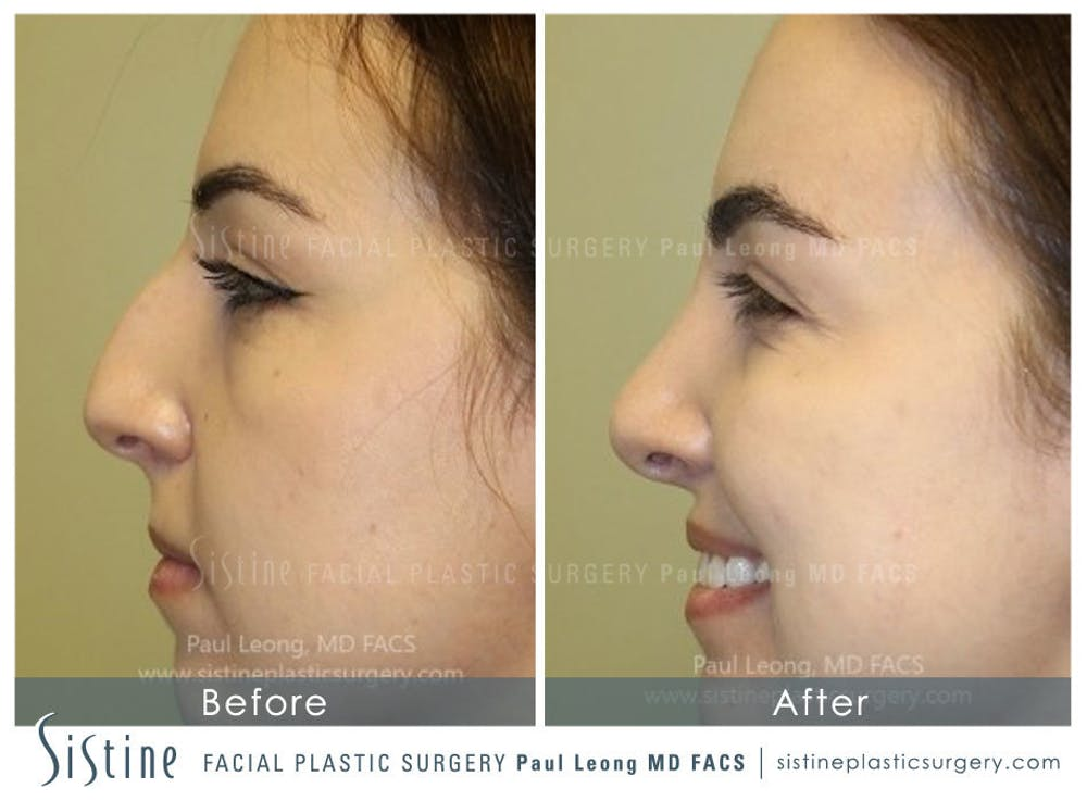 Nose Gallery - Patient 4890341 - Image 2