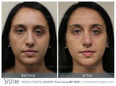 Dermal Fillers Gallery - Patient 4890600 - Image 1