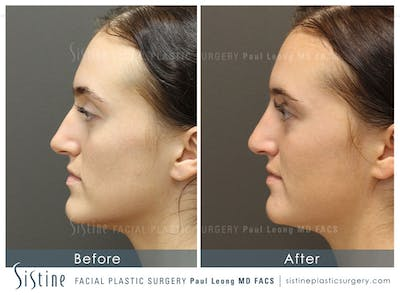 Dermal Fillers Gallery - Patient 4890603 - Image 2
