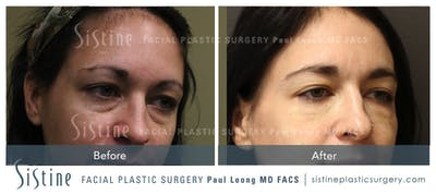 Dermal Fillers Gallery - Patient 4890606 - Image 1