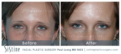 Dermal Fillers Gallery - Patient 4890621 - Image 1