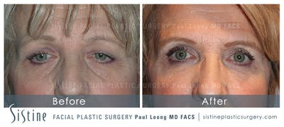 Dermal Fillers Gallery - Patient 4890655 - Image 1
