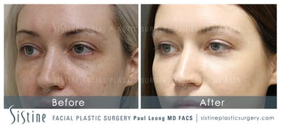 Dermal Fillers Gallery - Patient 4890896 - Image 1